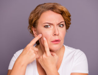 How to Treat Menopausal Acne: The Do's and Don'ts Explained