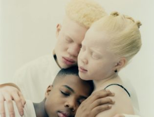 Albino Siblings Take the Modeling World By Storm After Being Bullied